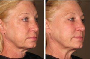 миостимуляция лица отзывы фото до и после